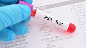 30-09-2020 | Profilaktyka i wczesne wykrywanie chorób układu moczowo – płciowego mężczyzn